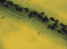 Ectomycodrrhiza Fungi- Mircroscopic view of AM fungus, the dark masses inside the cell of this clover root are vesicules.